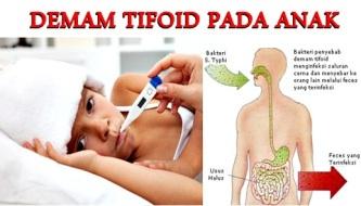 Obat Demam Tifoid Yang Terbukti Ampuh